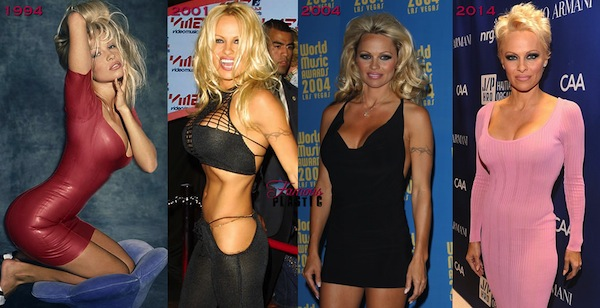 best celebrity boob jobs, pamela anderson