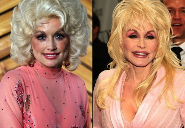 best celebrity boob jobs, dolly parton