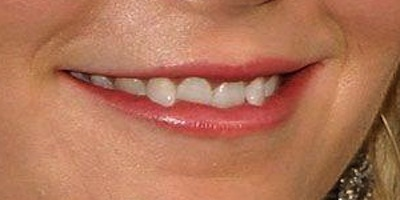 Guess The Celebrity Bad Teeth Game Mandatory