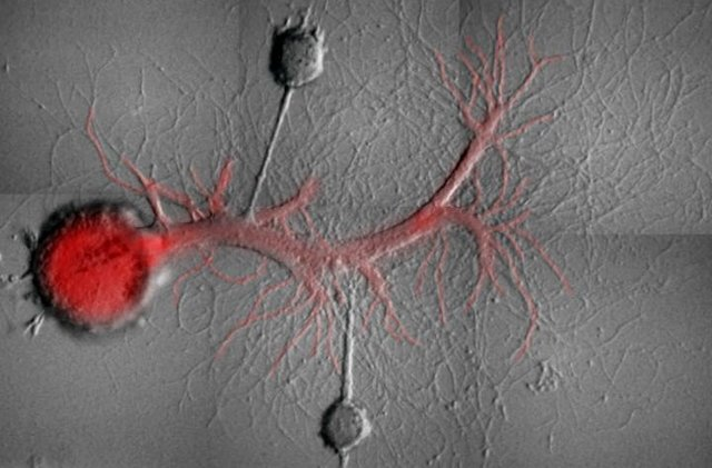 Two Aplysia sensory neurons with synaptic contacts on the same motor neuron in culture after isolation from the nervous system of Aplysia. The motor neuron has been injected with a fluorescent molecule that blocks the activity of a specific Protein Kinase M molecule. | Schacher Lab/Columbia University Medical Center.