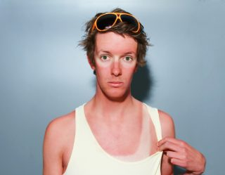 SPF: Sunburns Are Pretty Funny (Hilarious Photos to Prove It)